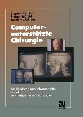 Computerunterstutzte Chirurgie: Medizinische Und Informatische Aspekte Am Beispiel Einer Pilotstudie