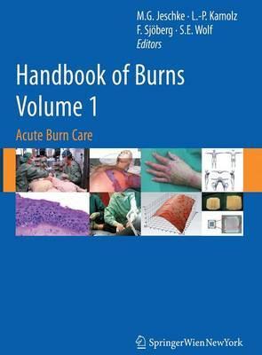 Handbook of Burns Volume 1: Acute Burn Care