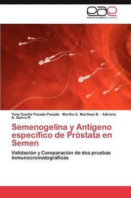 Semenogelina y Antigeno Especifico de Prostata En Semen