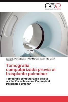 Tomografia Computarizada Previa Al Trasplante Pulmonar