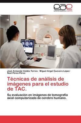 Tecnicas de Analisis de Imagenes Para El Estudio de Tac.