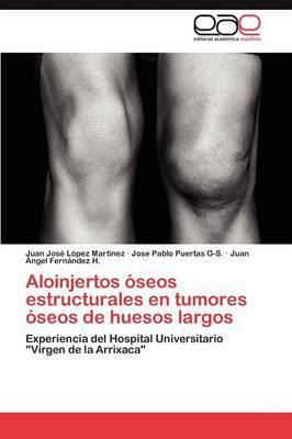 Aloinjertos Oseos Estructurales En Tumores Oseos de Huesos Largos