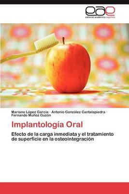 Implantologia Oral