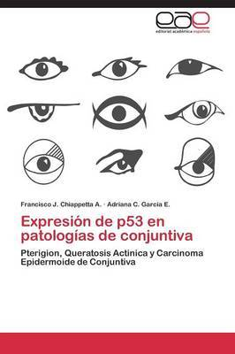 Expresion de P53 En Patologias de Conjuntiva