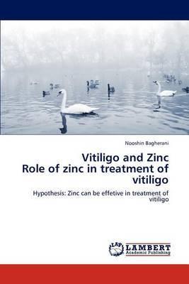Vitiligo and Zinc Role of Zinc in Treatment of Vitiligo