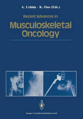 Recent Advances in Musculoskeletal Oncology