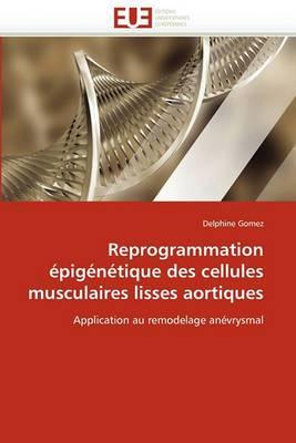Reprogrammation Epigenetique Des Cellules Musculaires Lisses Aortiques
