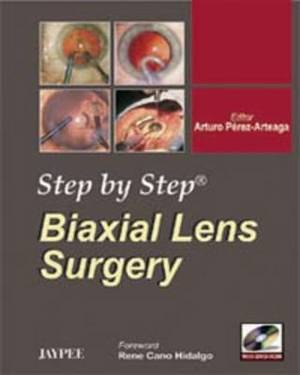 Step by Step: Biaxial Lens Surgery