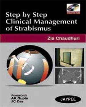 Step by Step: Clinical Management of Strabismus