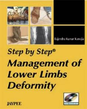 Step by Step Management of Lower Limbs Deformity