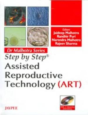 Step by Step: Assisted Reproductive Technology (ART)