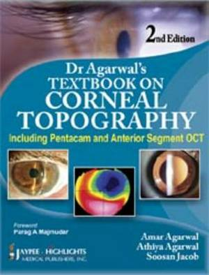 Dr Agarwal's Textbook on Corneal Topography: Including Pentacam and Anterior Segment OCT
