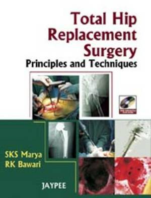Total Hip Replacement Surgery: Principles & Techniques