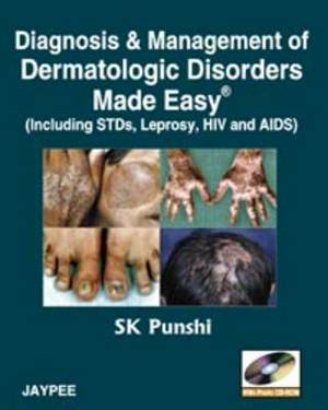 Diagnosis and Management of Dermatologic Disorders Made Easy: Including STDs, Leprosy, HIV and AIDs