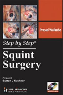 Step by Step Squint Surgery