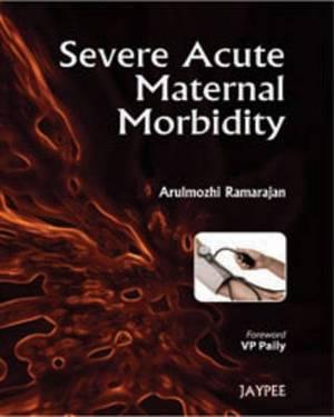 Severe Acute Maternal Morbidity