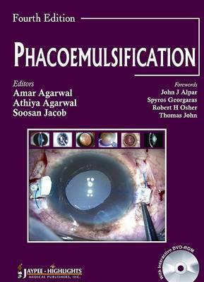 Phacoemulsification