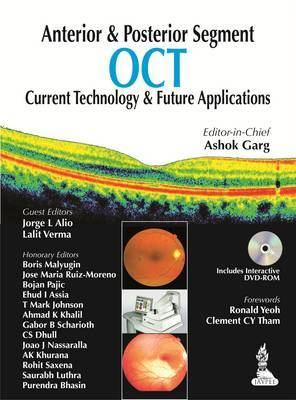 Anterior & Posterior Segment OCT: Current Technology & Future Applications