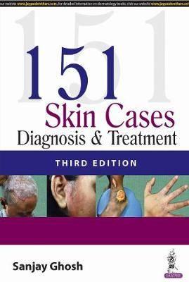151 Skin Cases: Diagnosis & Treatment