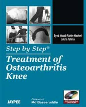 Step by Step: Treatment of Osteoarthritis Knee
